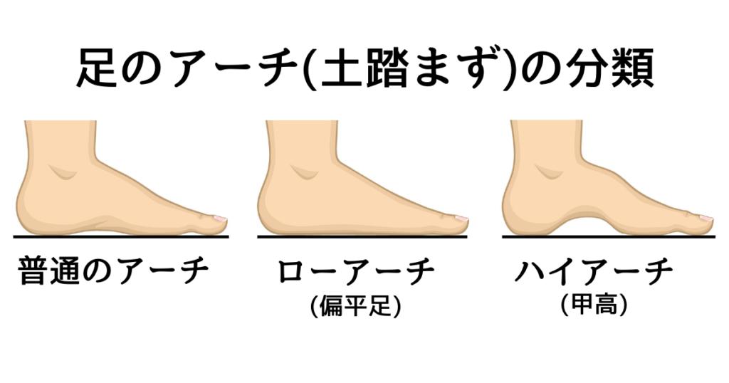 足のアーチの分類