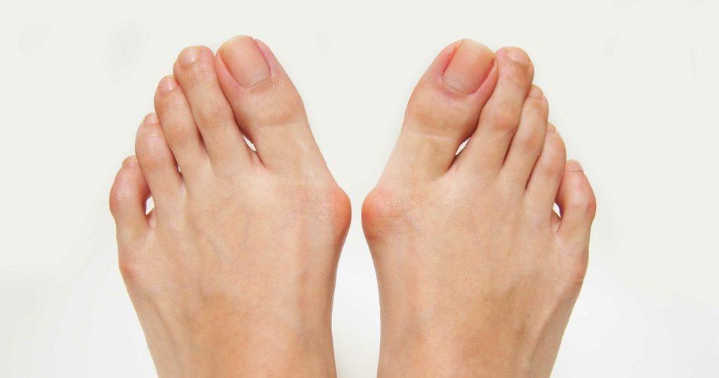 外反母趾で内反小趾の足