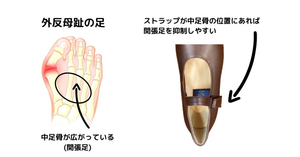 中足骨の位置をストラップでホールド